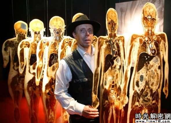德國小報稱馮·哈根斯是「死亡博士」,並稱他的新商店是「人體超市」。