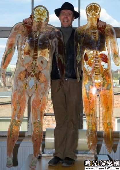 馮·哈根斯利用他發明的塑化技術,加工成的厚度只有幾毫米的人體橫截面切片。