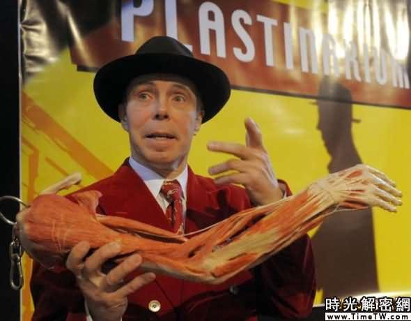 目前還不清楚馮·哈根斯將在他的新商店裡出售什麼身體部位。不過有報道稱,胳膊標本將是賣品之一。