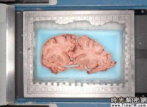 科學家用冷凍人腦製成切片繪製大腦圖集(圖)