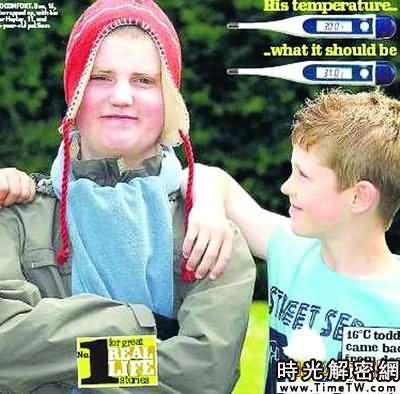 英國怪病男孩體溫只有30℃ 吃冰激凌會要命