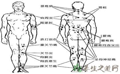 人體穴位圖