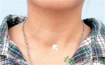 甲狀腺結節的症狀
