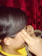 偏頭痛的針灸治療