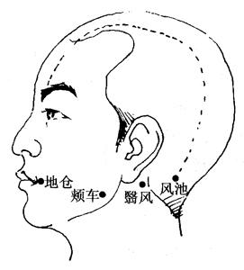 面癱的刮痧療法
