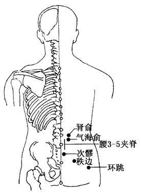 坐骨神經痛的刮痧療法