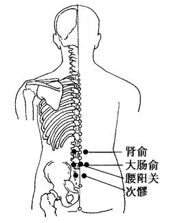 坐骨神經痛的拔罐療法