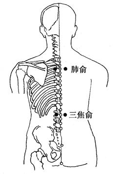 水腫(腎炎)的拔罐療法