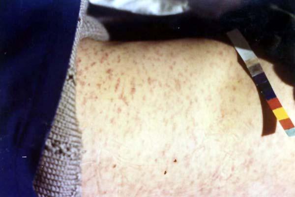中醫望皮膚之麻疹胸